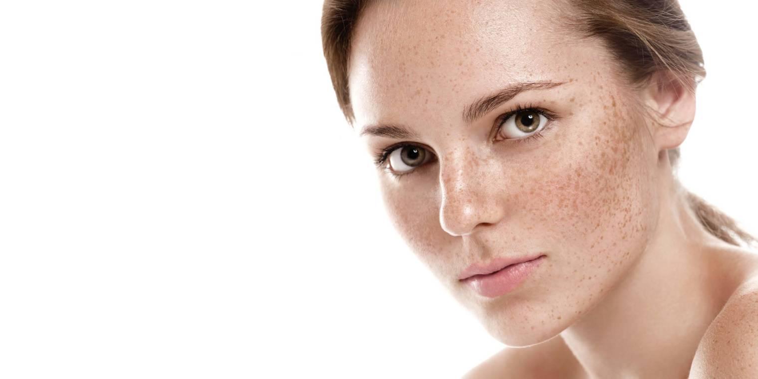 Freckles and Lentigens