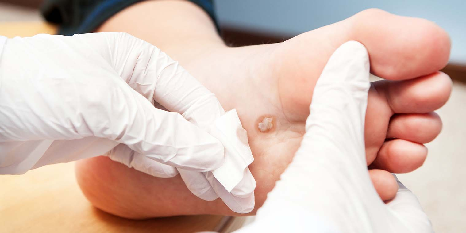 Wart Removal in Noida