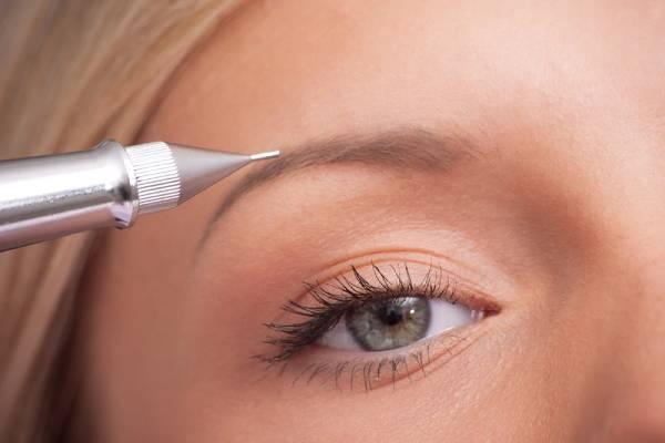 Eyebrow pigmentation (Microblading)