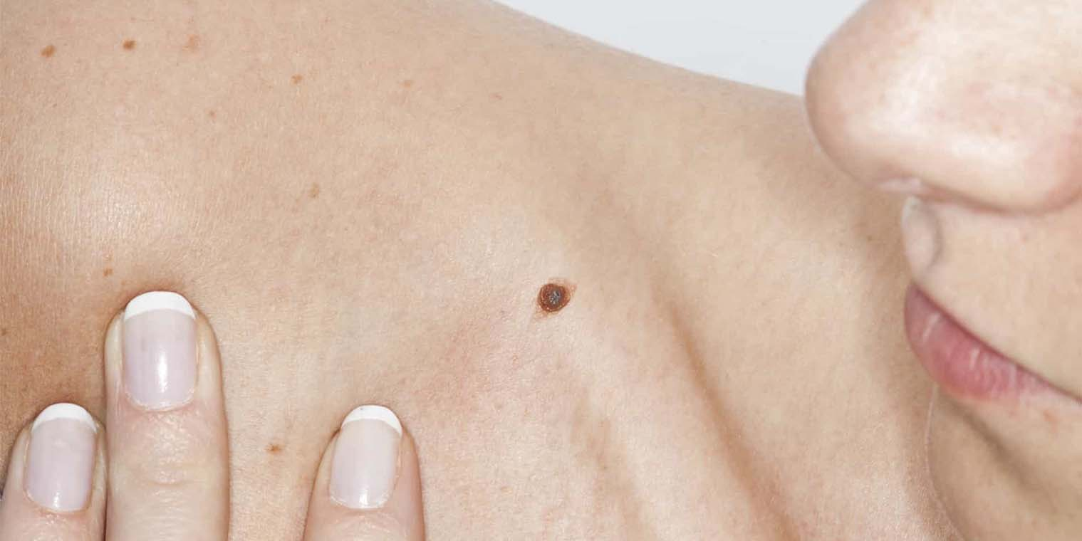 Mole Removal Treatment in Noida